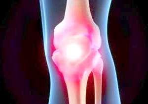 Як зміцнити кістки і суглоби