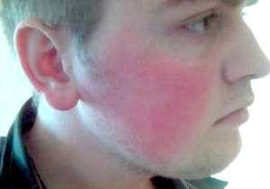 Почервоніння шкіри обличчя у чоловіків