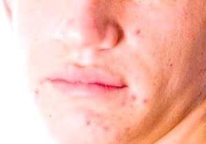 Прищі на обличчі у чоловіків